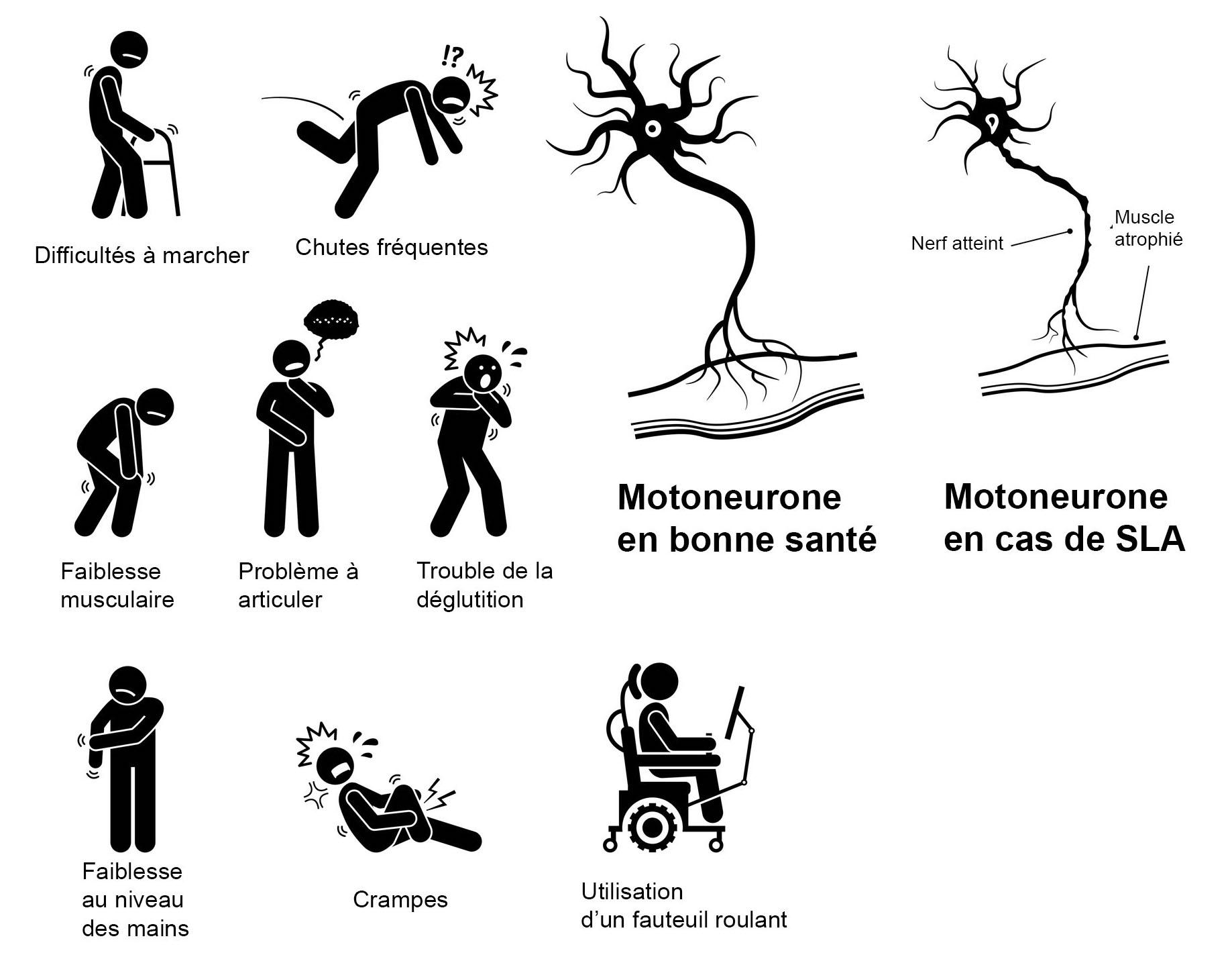 symptomes maladie charcot