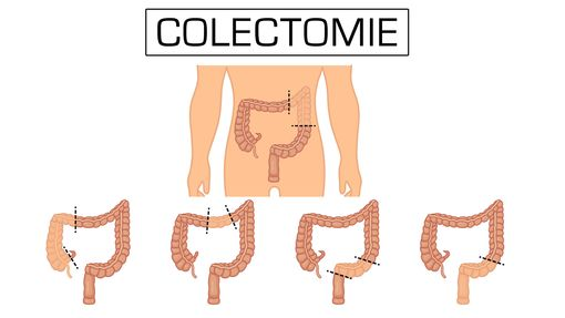 colectomie