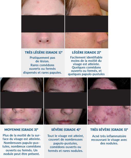 stades acne