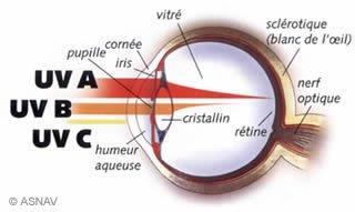 Les UV et les lésions oculaires