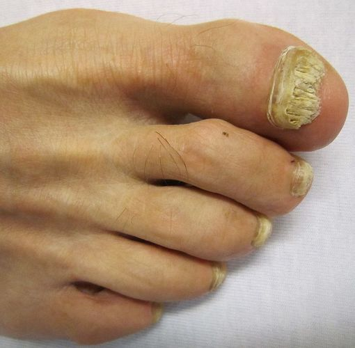 mycose ongle pied